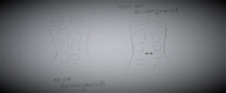 rektusdiastase-zeichnung